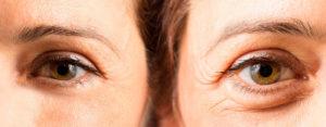 Botox før og efter billeder