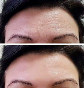 Botox før og efter