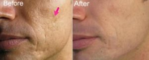 E-dermastamp behandling